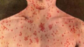 A person with a measles rash is seen in this file photo.