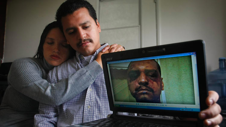 Gabriel Carrillo and Grace Martinez show a photo she took of Carrillo a few days after he was beaten by Los Angeles County sheriff's deputies at the Men's Central Jail. (Credit: Don Bartlett /Los Angeles Times)