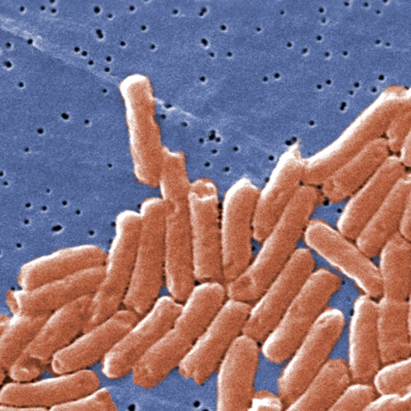 This colorized scanning electron micrograph depicts a colony of rod-shaped salmonella bacteria. (Credit: CDC)