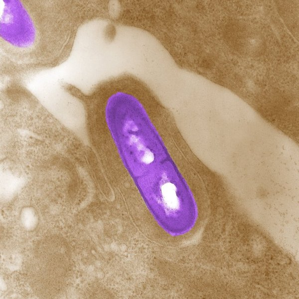 Listeria is shown in a file photo.