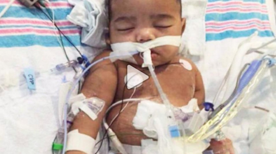 AJ Burgess was born prematurely, his mother says. (Credit: GoFundMe)