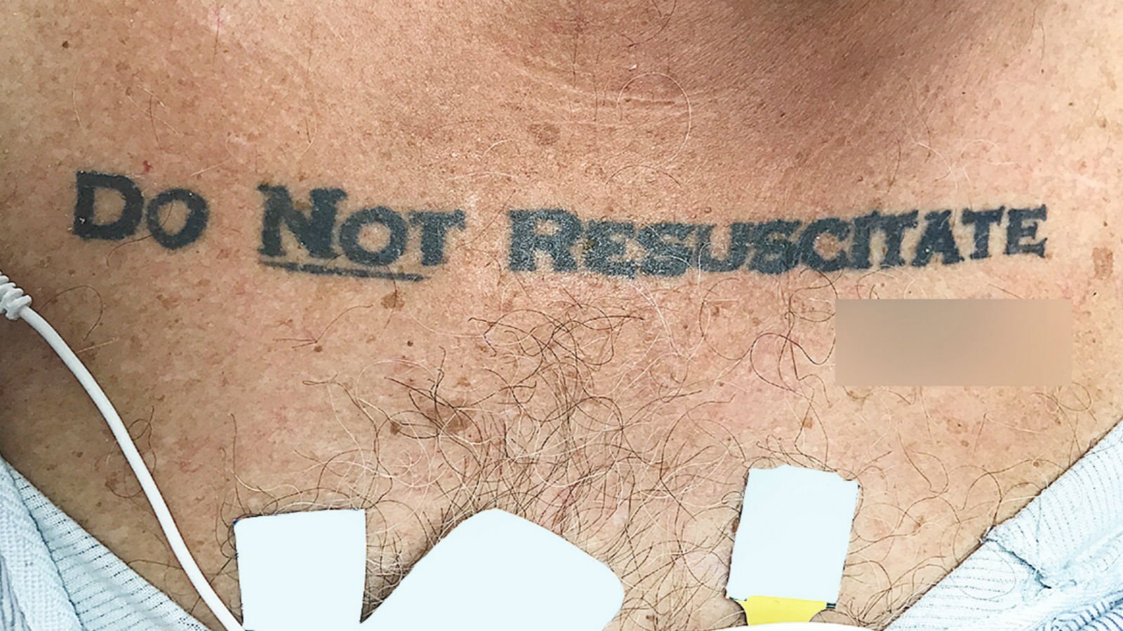 A photo provided by University of Miami shows the man's tattoo.