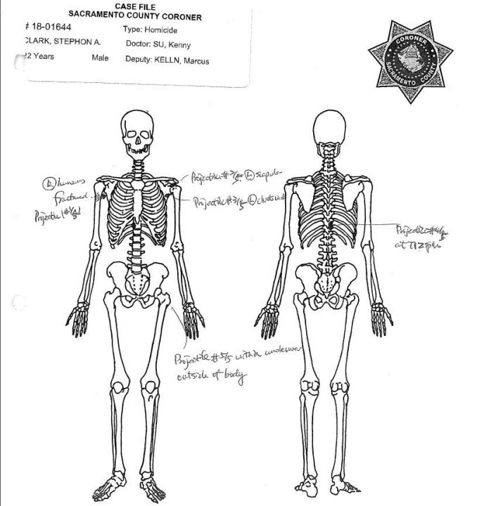 A skeletal view shows a fracture to the right humerus, perforation of the left scapula and fractures to Stephon Clark's ribs and spine in images from the Sacramento County Coroner's report released May 1, 2018.