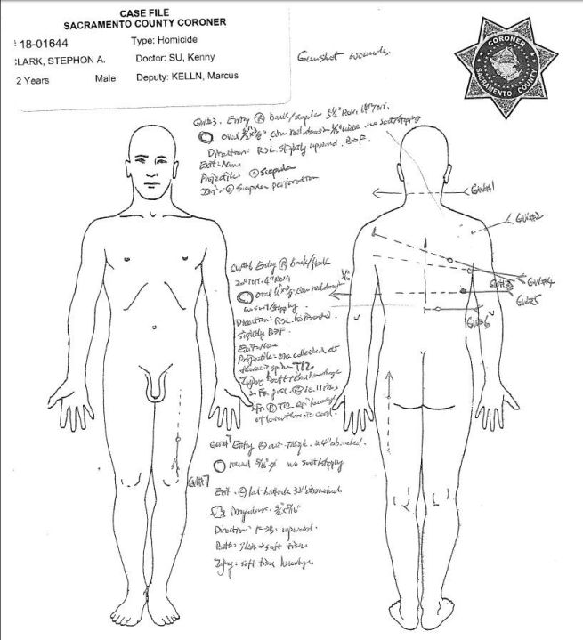 Gunshot wounds to Stephon Clark's back, left thigh, arm, neck and chest are shown in images from the Sacramento County Coroner's report released May 1, 2018.