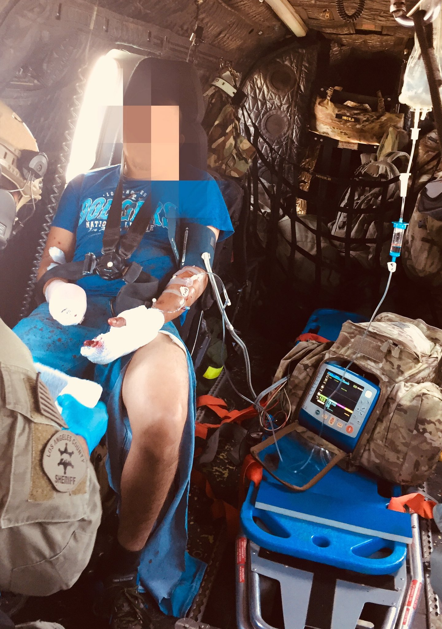 Los Angeles County sheriff's officials released this image of a man being airlifted for treatment of a fireworks injury on July 2, 2018.