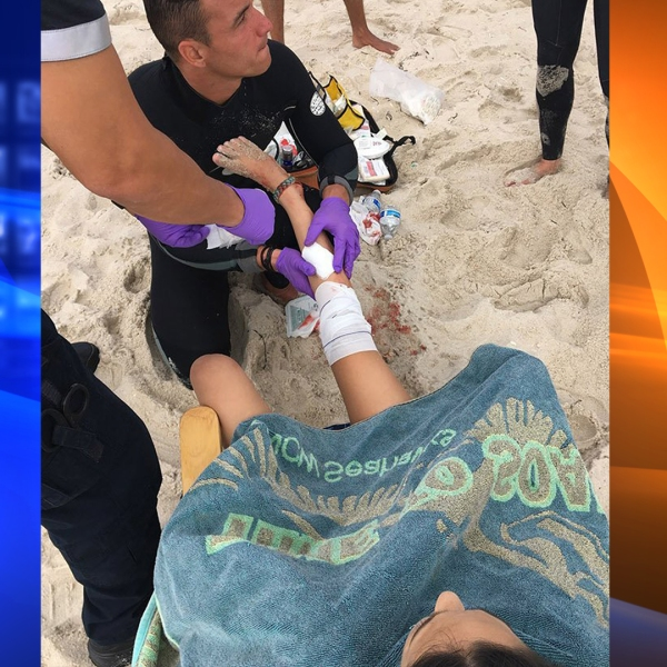 Lola Pollina has her leg wrapped after a suspected shark attack.