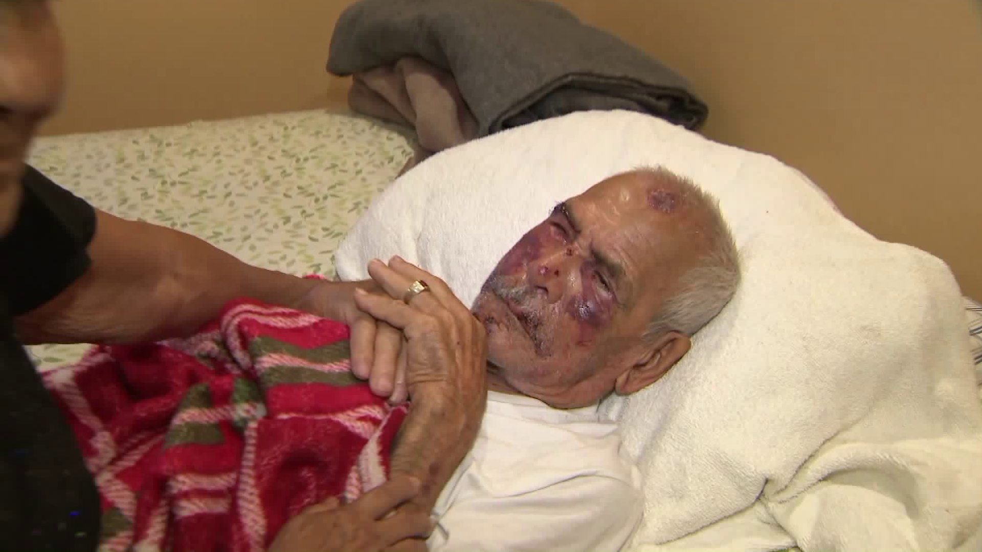 Rodolfo Rodriguez, 92, recovers on July 6, 2018, two days after he was brutally attacked while walking in South Los Angeles. (Credit: KTLA)