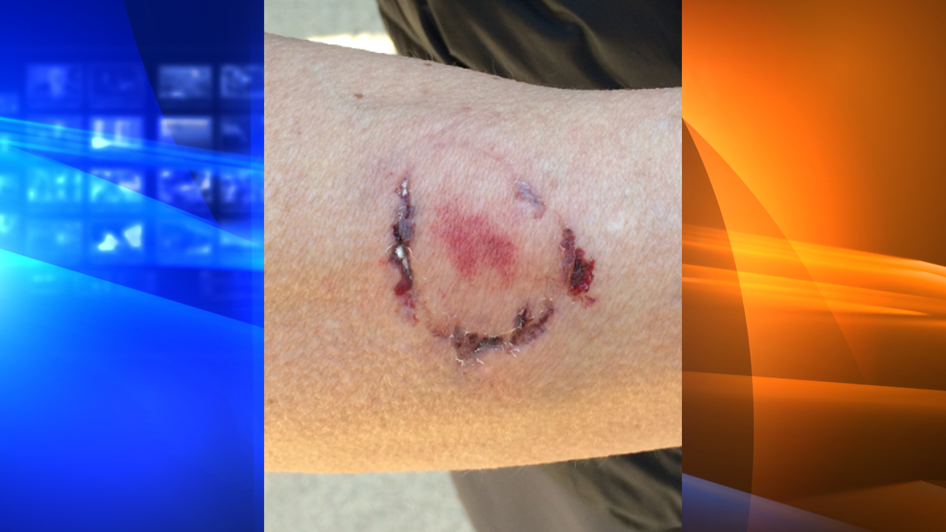 A woman was bitten by another woman after she sprayed the suspect's dog with pepper spray to fend of an attack at Anthony Chabot Regional Park in Castro Valley on Jan. 3, 2019. (Credit: East Bay Regional Park District Police Department)