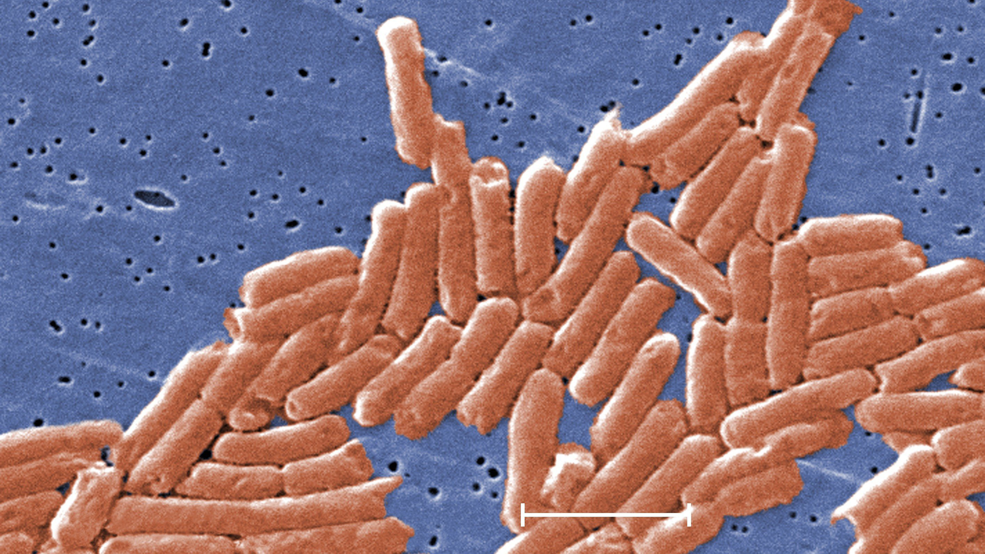 An image of salmonella distributed by the CDC.