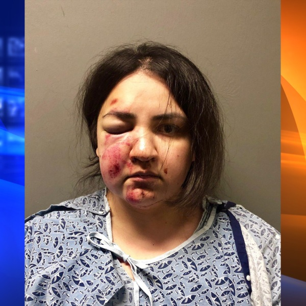 Tierra Ortega is seen with facial injuries in this booking photo provided by Upland Police Department.