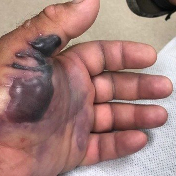 A photo of Mike Walton's hand after he contracted flesh-eating bacteria. (Credit: WFTS)