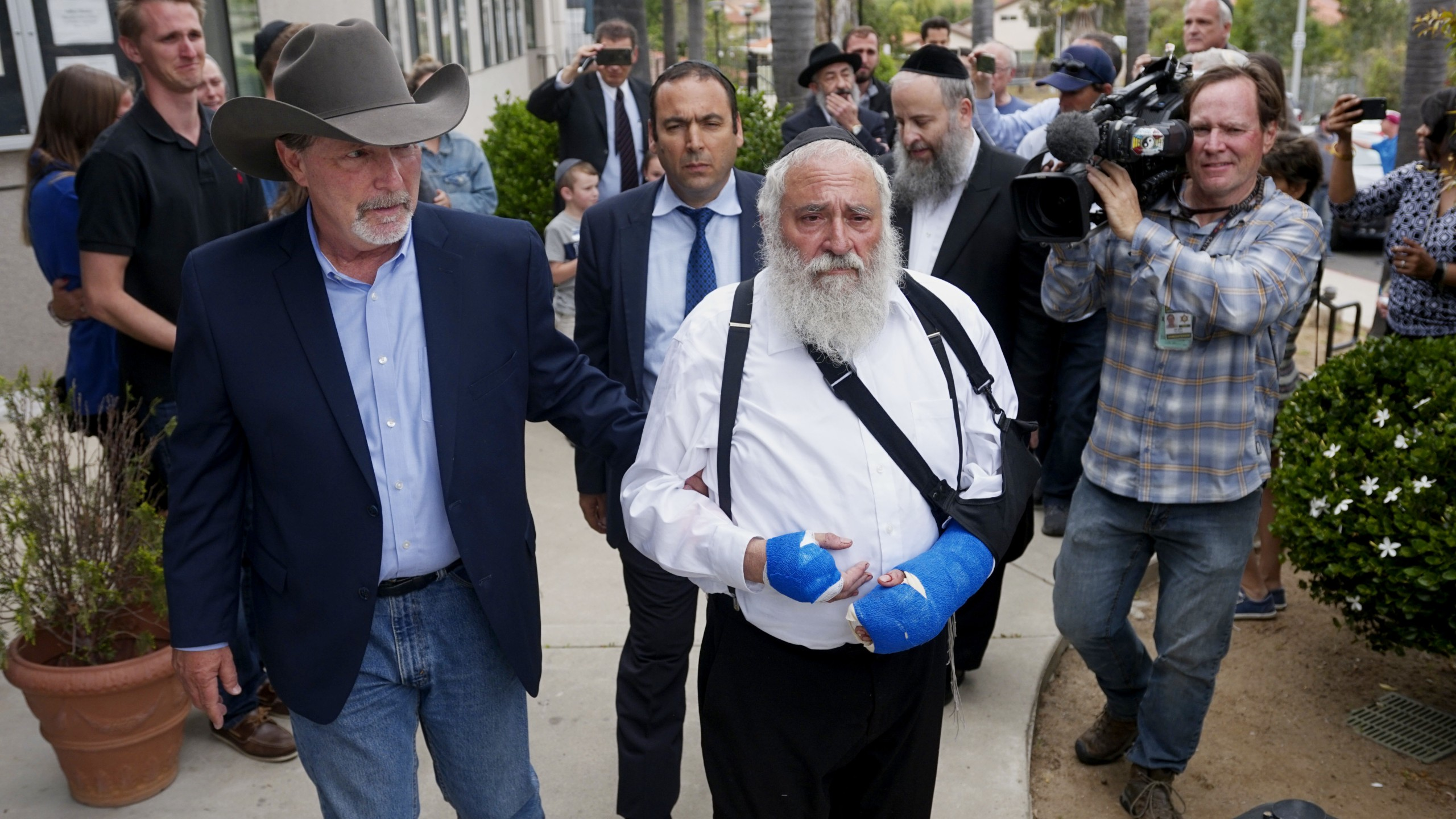 Executive Director Rabbi Ysrael Goldstein, who was shot in the hands, walks towards a press conference with Poway Mayor Steve Vaus outside of the Chabad of Poway Synagogue on April 28, 2019, in Poway, Calif. (Credit: SANDY HUFFAKER/AFP/Getty Images)