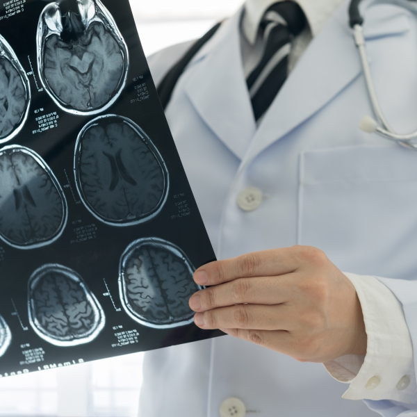 A doctor examines a brain scan in this file photo. (Credit: iStock / Getty Images Plus)