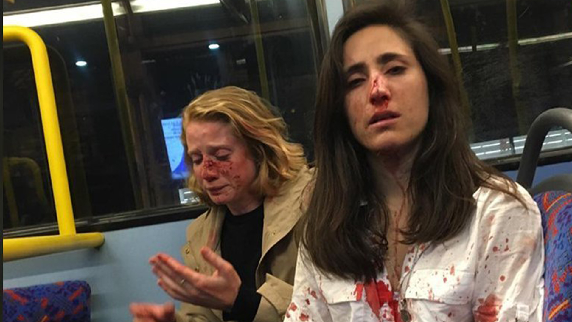Melania Geymonat, pictured on the right, posted this photo of herself and her girlfriend to Facebook on June 5, 2019 after they were attacked on a London bus. (Credit: CNN)