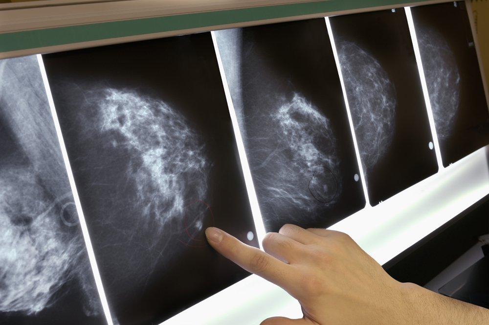 Sleep traits could be a risk factor for breast cancer, new research suggests. (Credit: Getty Images)
