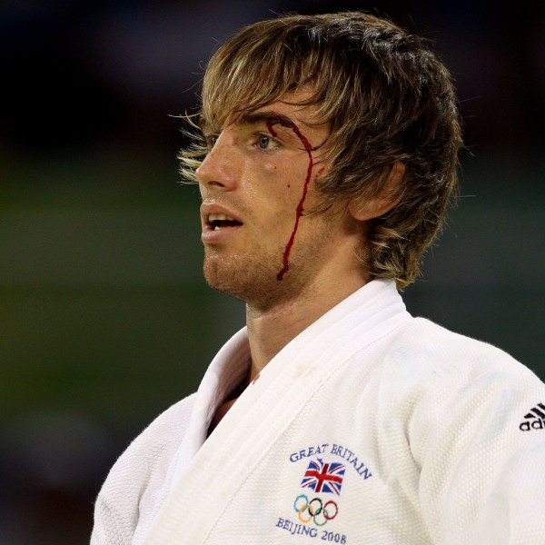 Blood drips down the face of Craig Fallon of Great Britain during Day 1 of the Beijing 2008 Olympic Games in China. (Credit: Ezra Shaw/Getty Images)