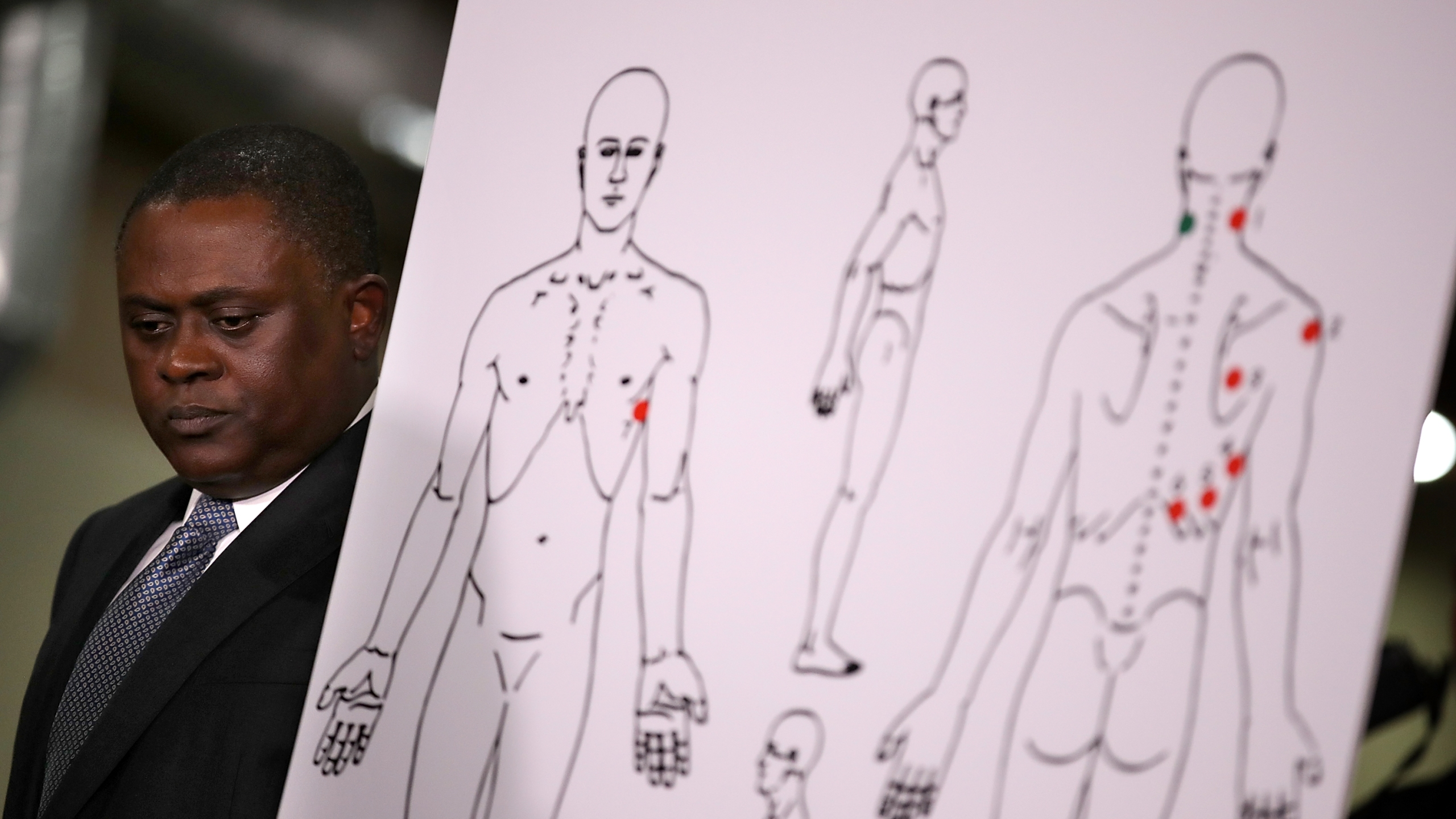 Dr. Bennet Omalu stands by a diagram showing the results of his autopsy of Stephon Clark during a news conference in Sacramento on March 30, 2018. (Credit: Justin Sullivan / Getty Images)