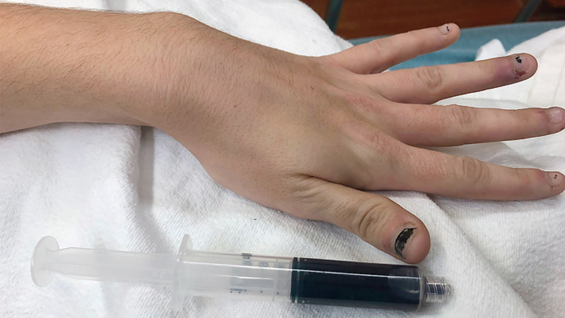 The woman's hand is seen next to a vial of blue blood. (Credit: New England Journal of Medicine)