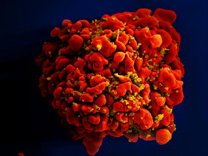 A scanning electron microscope (SEM) image that's been digitally colorized depicts a single, red-colored H9-T cell that was infected by numerous mustard-colored HIV particles. (Credit: U.S. Centers for Disease Control and Prevention)