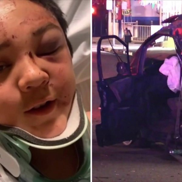 Victor Magaña is seen at the hospital following a hit-and-run crash that left him with critical injuries in El Monte. (Credit: Emily Muñoz) On the right, a vehicle involved in the crash is seen in El Monte on Jan. 18, 2020. (Credit: RMG News)
