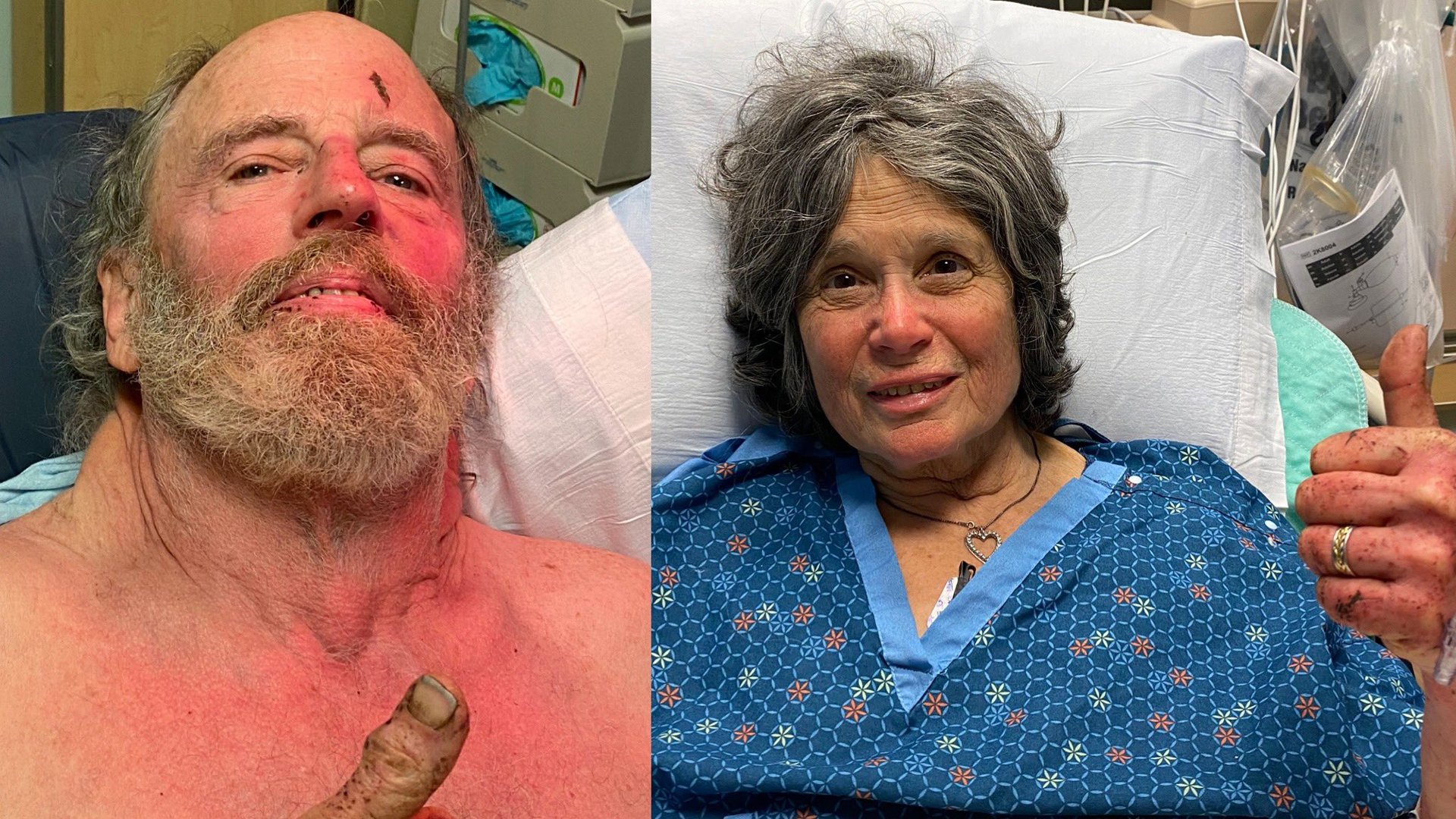 Ian Irwin, 72, left, and Carol Kiparsky, 77, of Palo Alto, pictured after their rescue after a week lost in a forest in Marin County on Feb. 22, 2020. (Credit: Marin County Sheriff's Office)