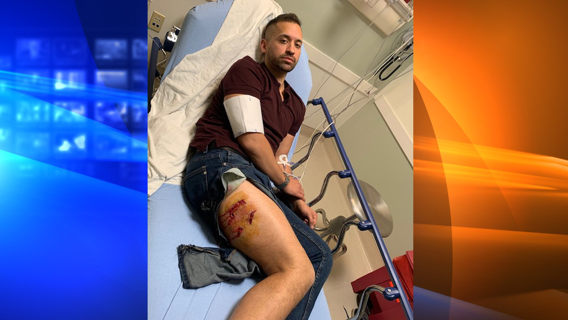 Matthew Gutierrez is pictured at the hospital after he was attacked by a pit bull on Feb. 11, 2020.