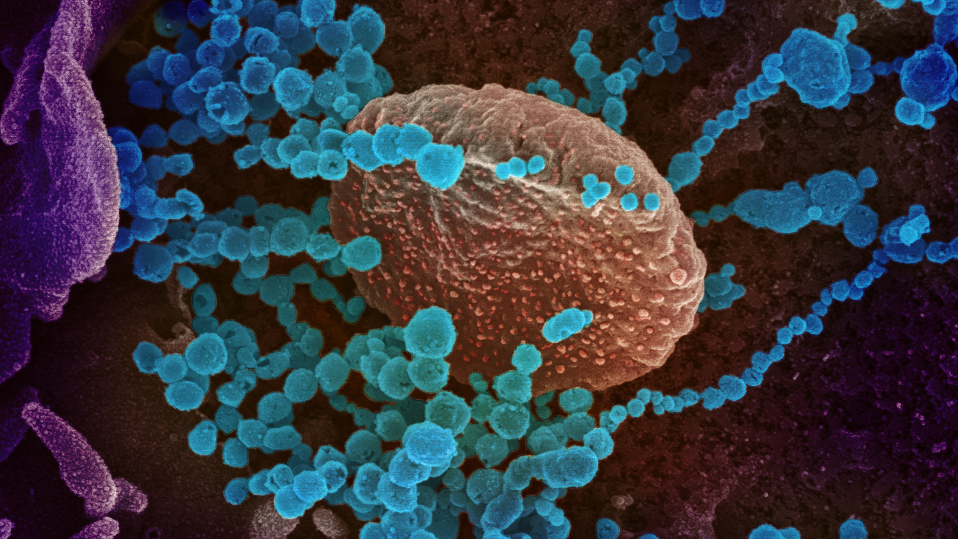 This scanning electron microscope image shows coronavirus emerging from the surface of cells cultured in a lab. (Credit: National Institute of Allergy and Infectious Diseases)
