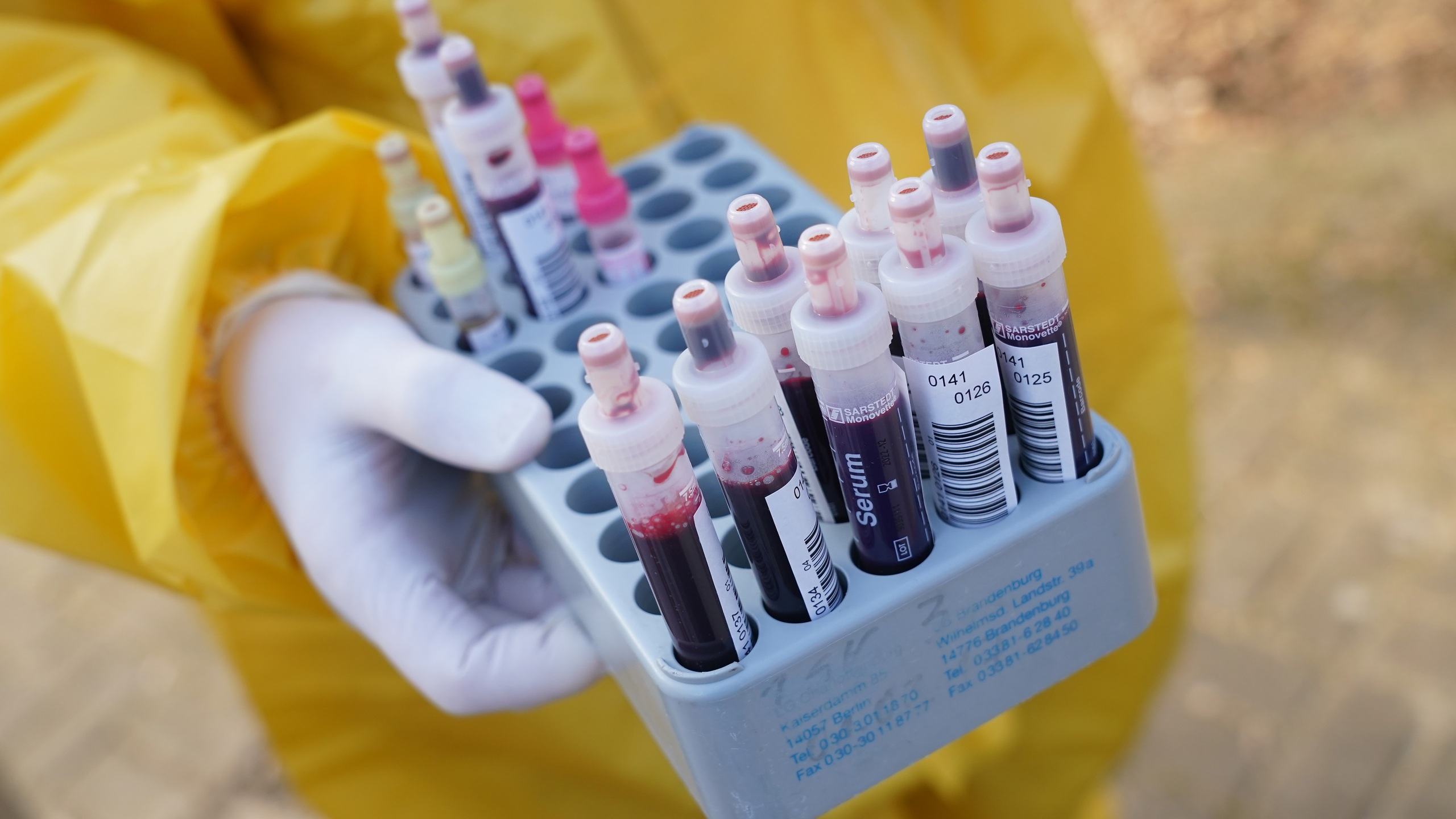 A medical volunteer in a protective suit holds vials of blood samples taken from patients being tested for the coronavirus on March 27, 2020, in Berlin, Germany.(Sean Gallup/Getty Images)