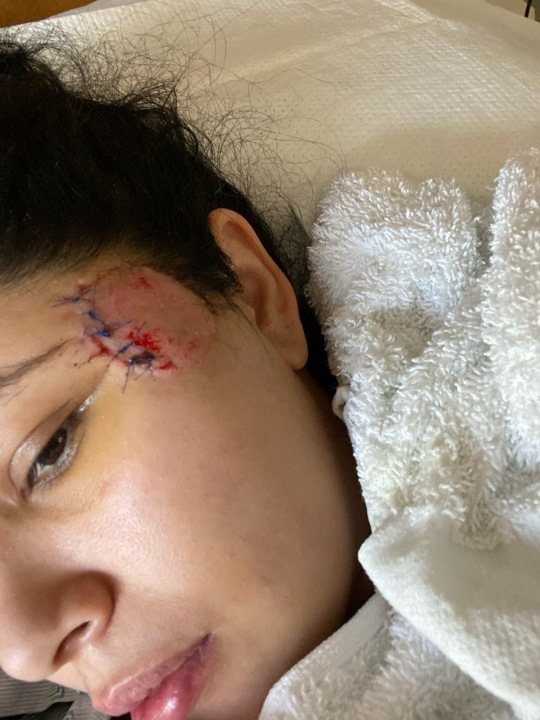 Jasmine Morales, 26, spent nine days hospitalized at Cedars Sinai Medical Center after she says a foam bullet hit her head. (West Coast Trial Lawyers)