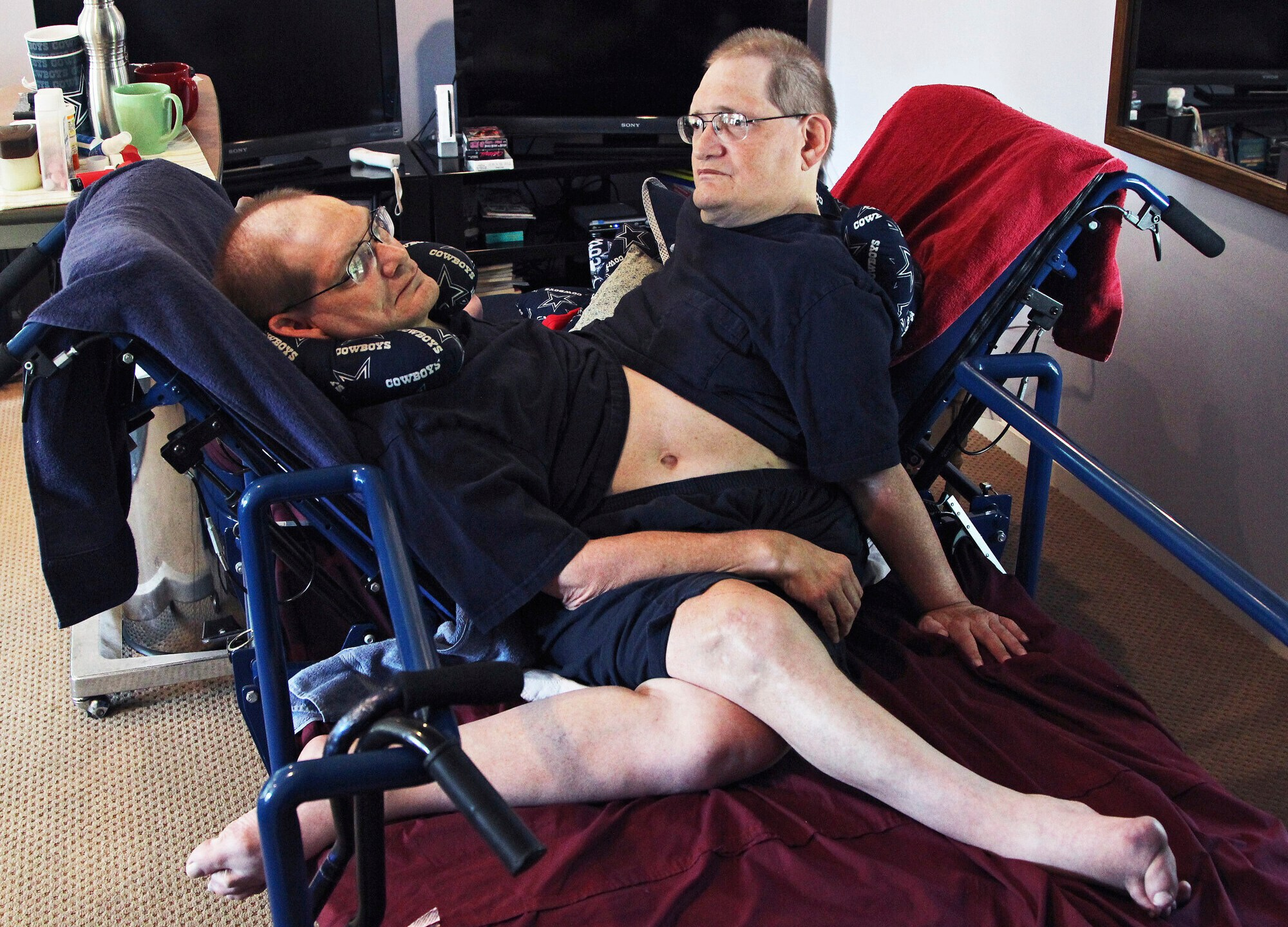 Donnie, left, and Ronnie Galyon sit inside their Beavercreek, Ohio, home, in a July 2, 2014 file photo. (Drew Simon/Dayton Daily News via AP, File)