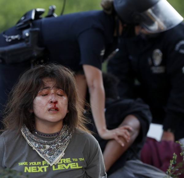 A woman's face is bloodied as LAPD officers take down protesters who were part of a group that shattered glass windows at the U.S. Courthouse in downtown L.A. on July 25, 2020. (Luis Sinco/Los Angeles Times)