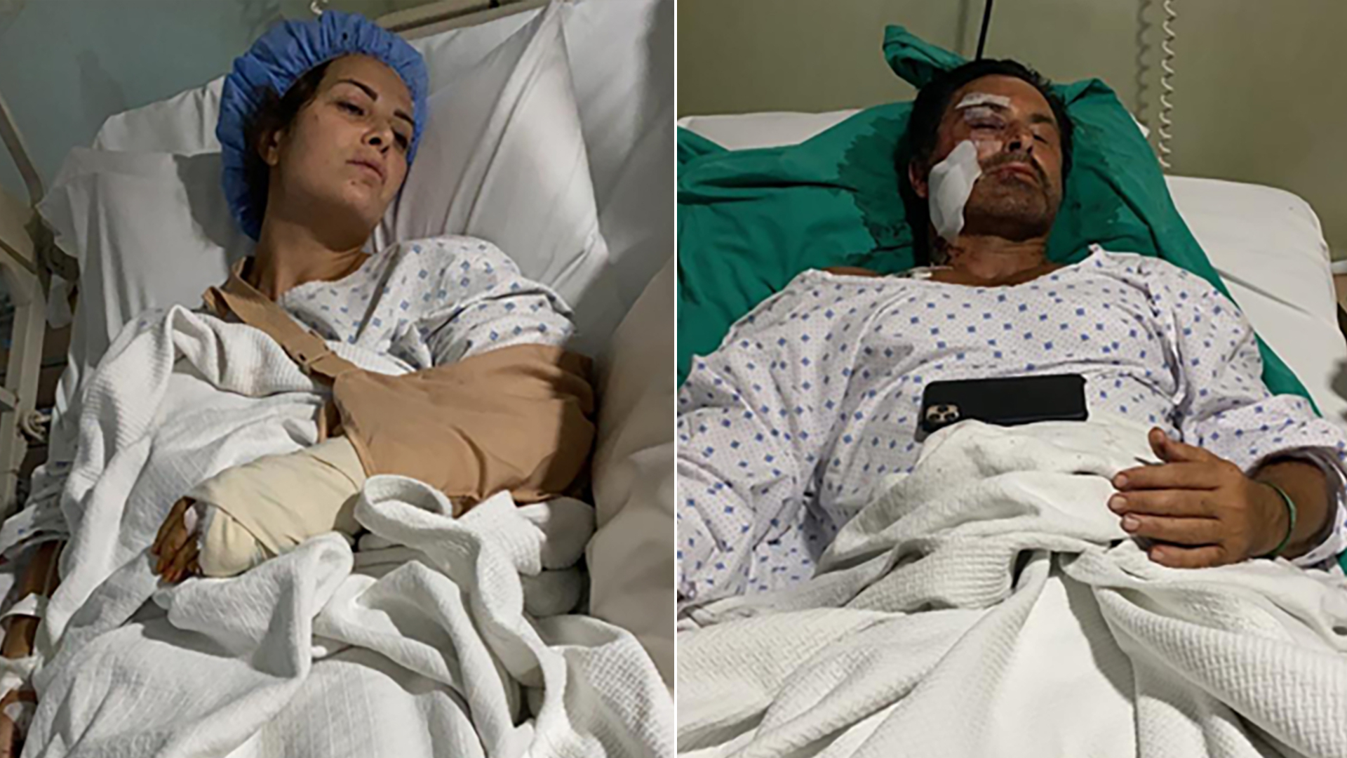 Lina Alameh, and Imad Khalil are seen in their hospital beds after undergoing surgery for injuries sustained in the Beirut explosion in undated photos the couple provided to CNN.