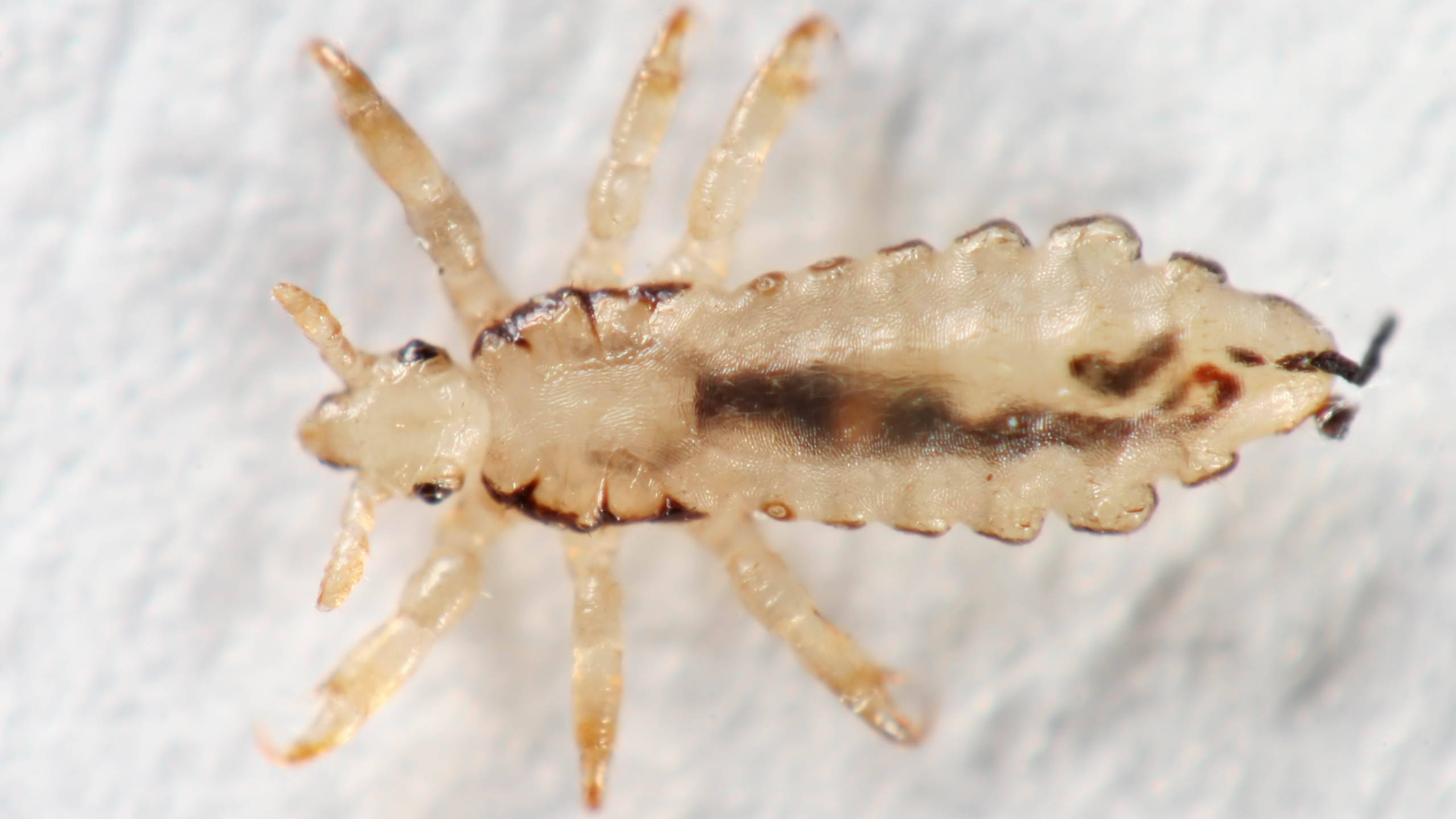 File photo of head louse. (iStock/Getty Images Plus)