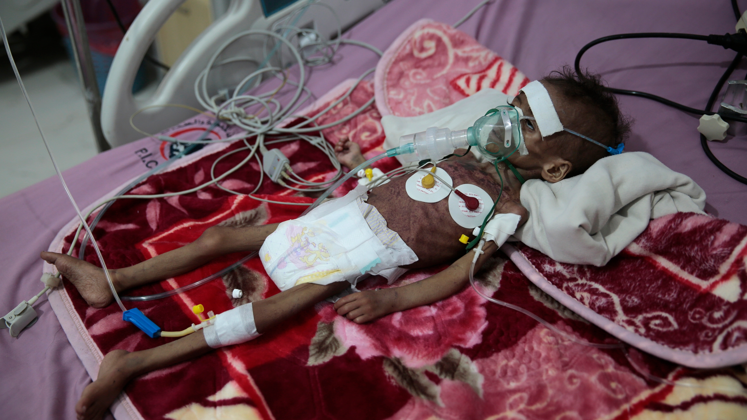 A malnourished girl Rahmah Watheeq receives treatment at a feeding center at Al-Sabeen hospital in Sanaa, Yemen, Tuesday. Nov. 3, 2020. (Hani Mohammed/AP Photo)