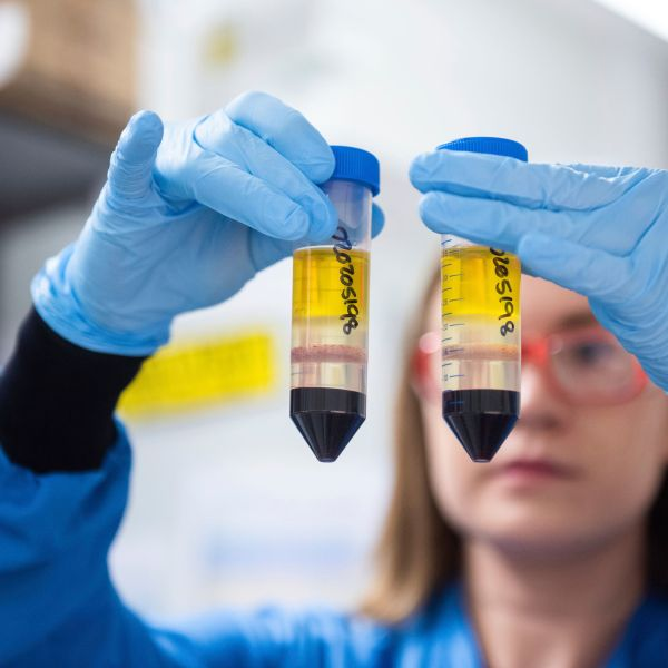 In this undated file photo issued by the University of Oxford on Nov. 23, 2020, a researcher in a laboratory at the Jenner Institute in Oxford, England, works on the coronavirus vaccine developed by AstraZeneca and Oxford University. (University of Oxford / John Cairns via Associated Press)