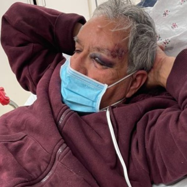 Family members shared a photo on a GoFundMe page of a man who was beaten outside a Baldwin Park grocery store on April 6, 2021.