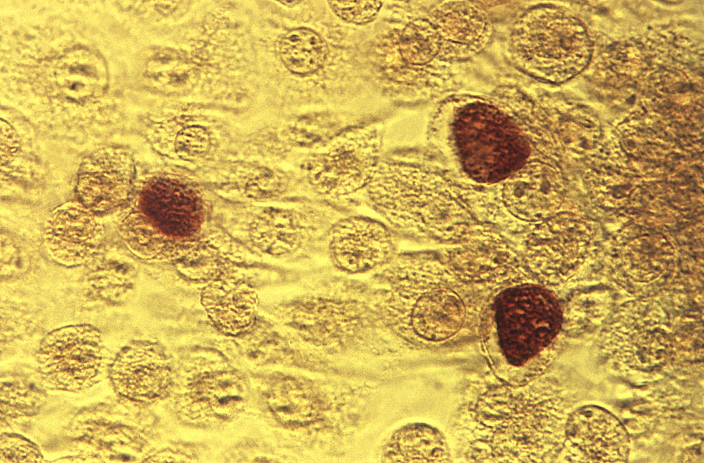 This 1975 microscope image made available by the the Centers for Disease Control and Prevention shows Chlamydia trachomatis bacteria. (Dr. E. Arum, Dr. N. Jacobs/CDC via AP)