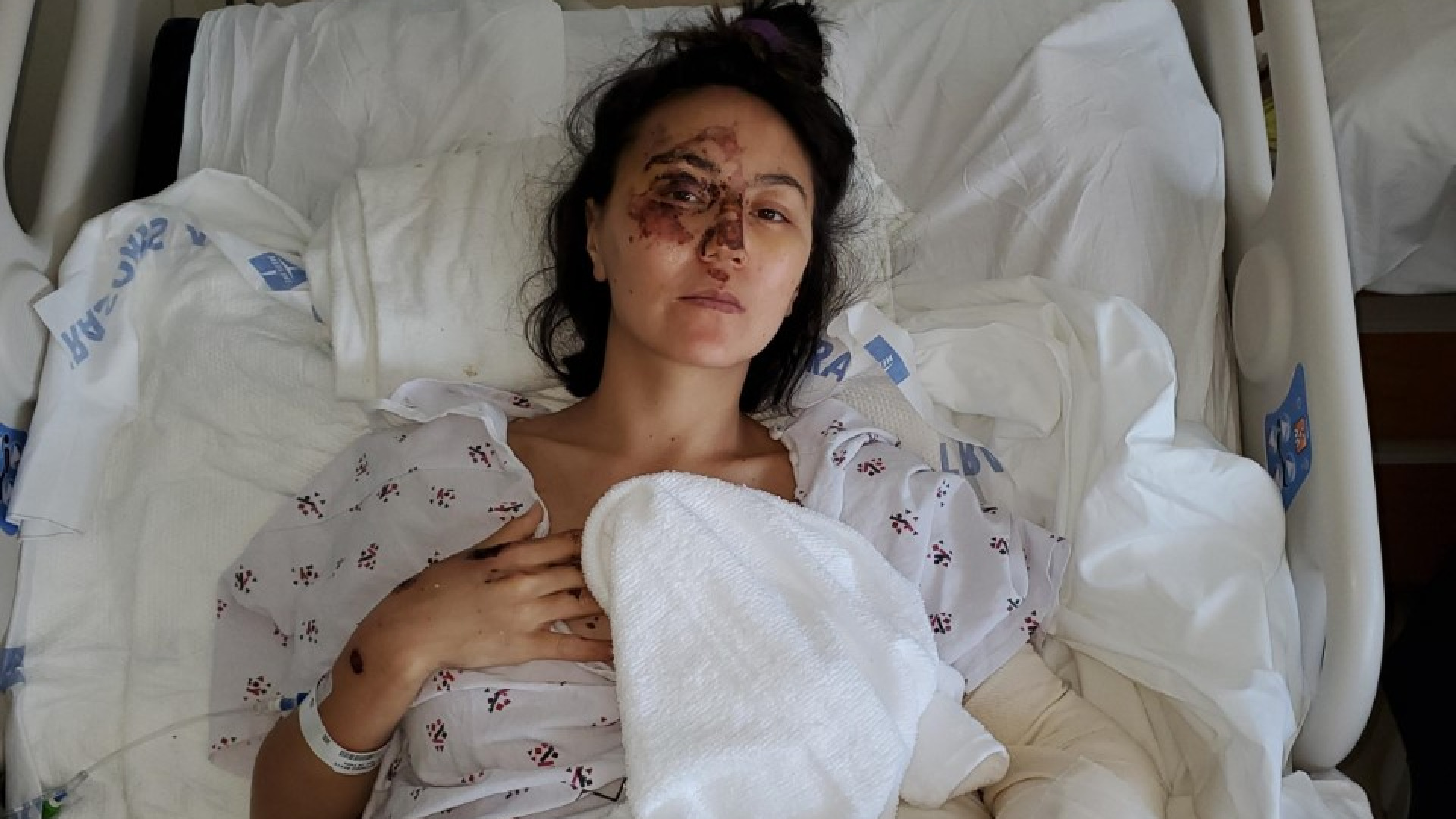 Bota Zhamysbayeva, 34, is seen in her hospital bed after being run over in downtown Los Angeles. (LAPD)