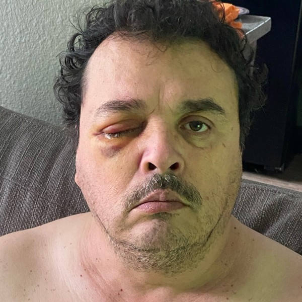 Alberto Avila, seen in this photo from October 2021, was assaulted by passengers he picked up while working as a driver for Lyft. (Fabiola Licea)